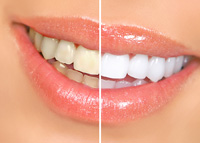 Zoom Teeth Whitening Fremont Cosmetic Dentistry