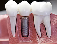 Freemont cosmetic dentistry dental implants